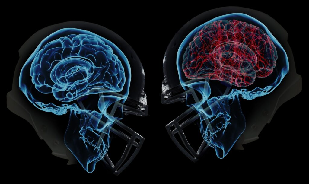 Is Post Concussion Syndrome Actually A Neck Injury? | Blair Upper Cervical Chiropractic