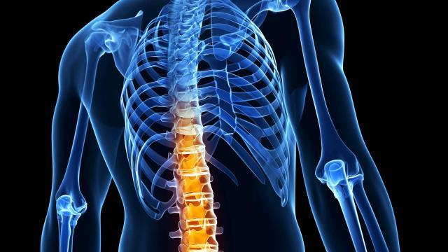 Blair Upper Cervical Research Shows Promise For Ankylosing Spondylitis | Natural Treatment For Ankylosing Spondylitis